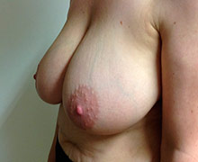Oblique view before breast reduction