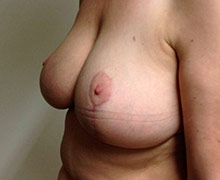 3 months after breast reduction surgery
