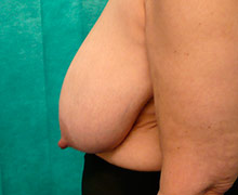 Preoperative bilateral breast reduction