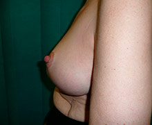 4 weeks following bilateral breast reduction procedure