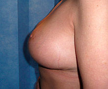 6 weeks following bilateral breast reduction procedure